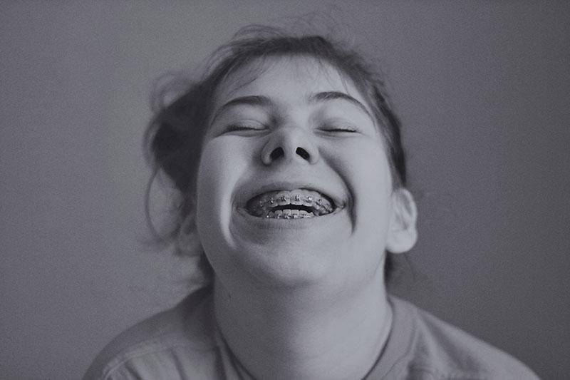 r_smile_livia_braces
